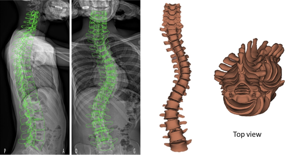 Quasi‐automatic 3D reconstruction of the full spine