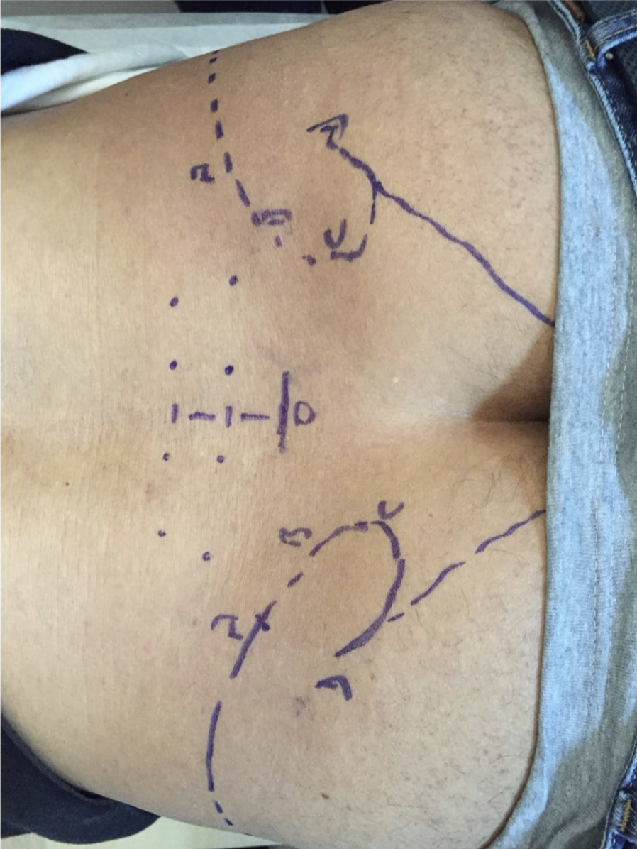 Dextrose injections for failed back surgery syndrome: a consecutive case series