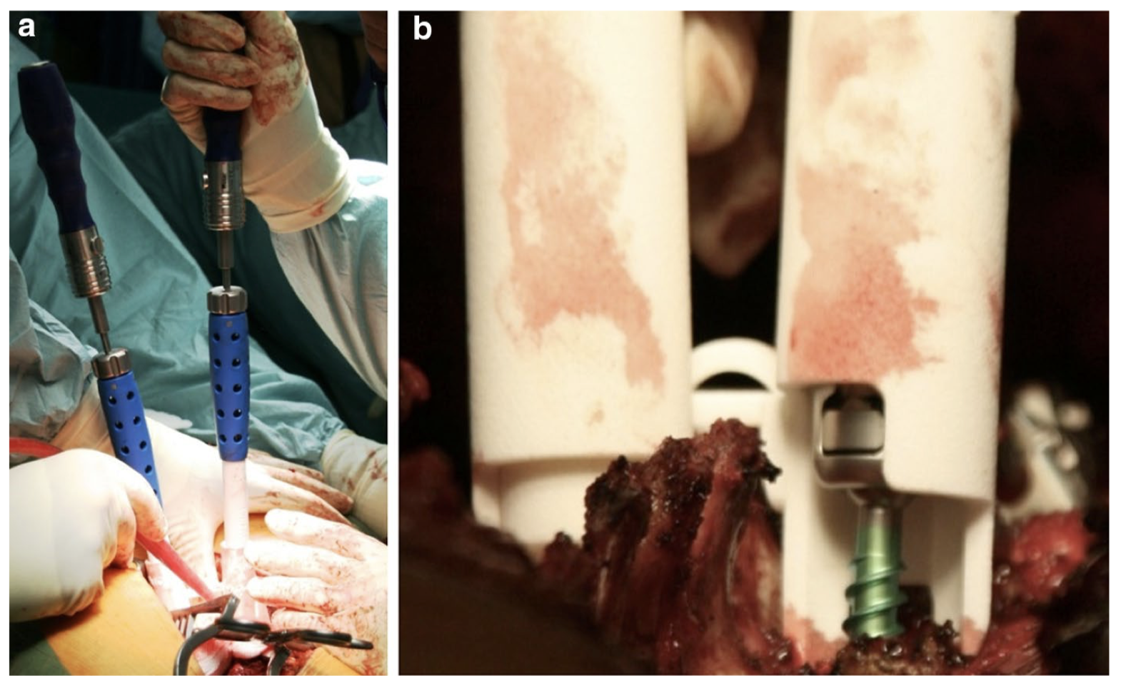 Pedicle screw insertion with patient-specific 3D-printed guides based on low-dose CT scan is more accurate than free-hand technique in spine deformity patients: a prospective, randomized clinical trial