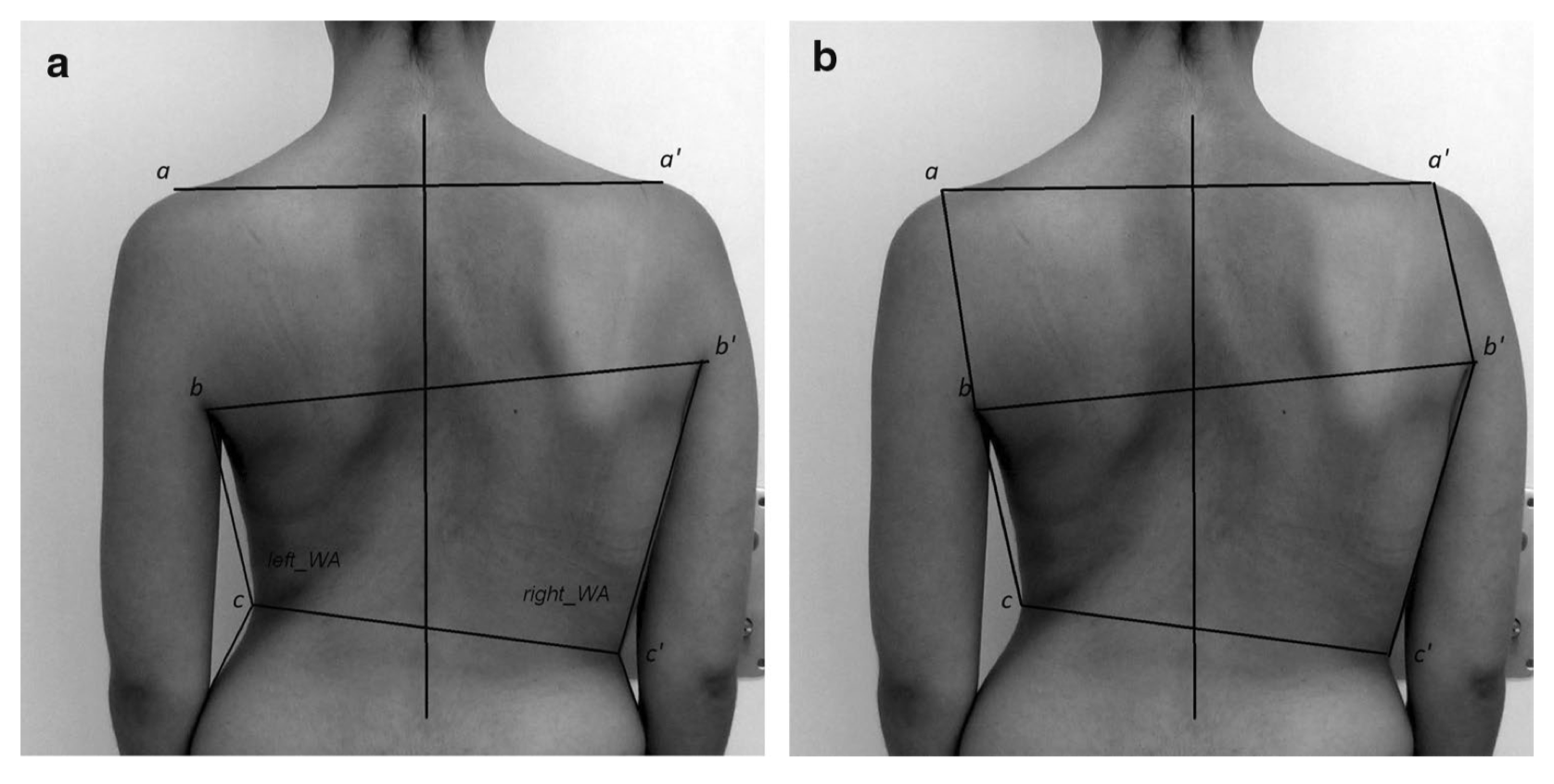 Clinical photography in severe idiopathic scoliosis candidate for surgery: is it a useful tool to differentiate among Lenke patterns?