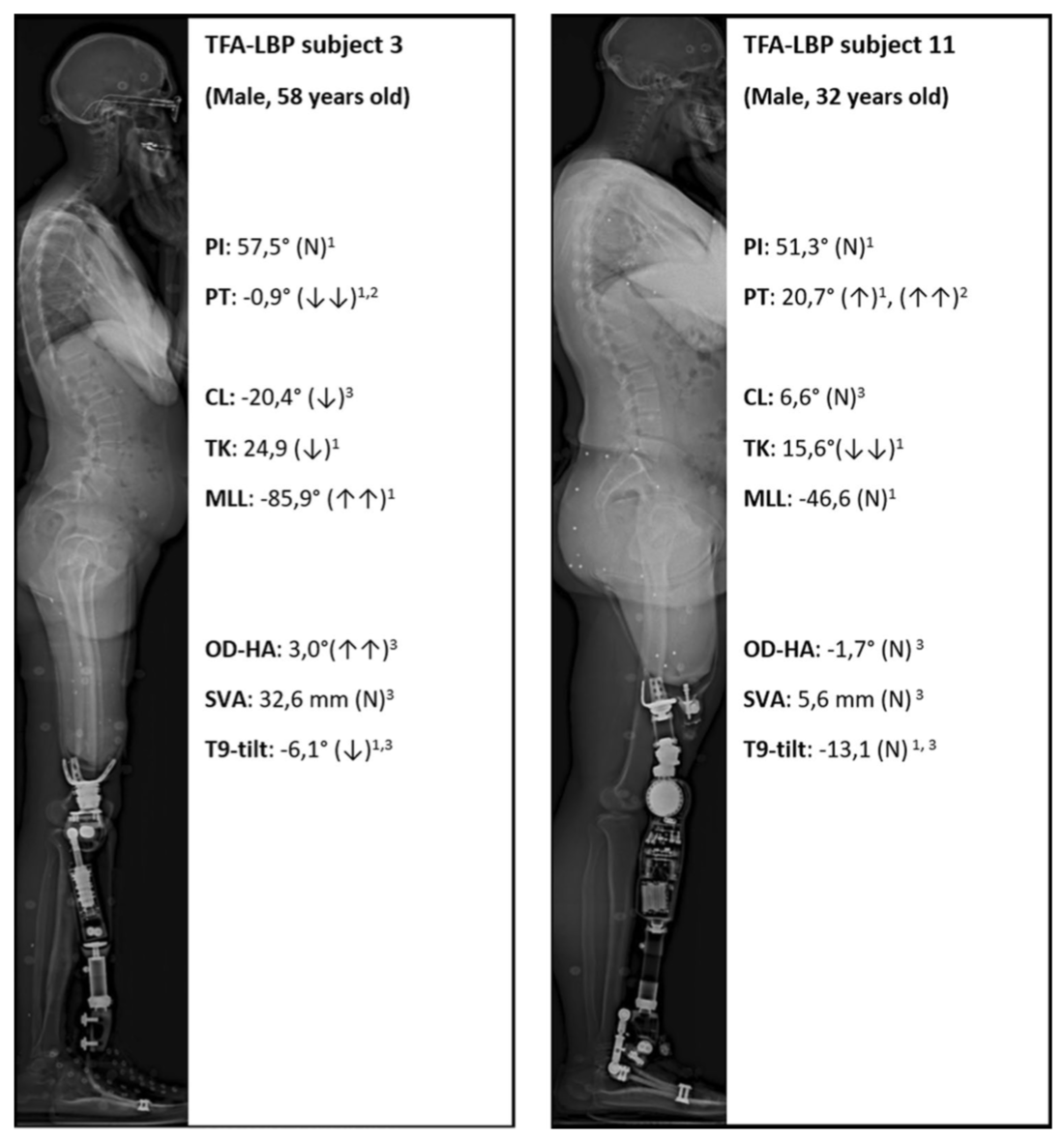 Spinopelvic sagittal alignment of patients with transfemoral amputation