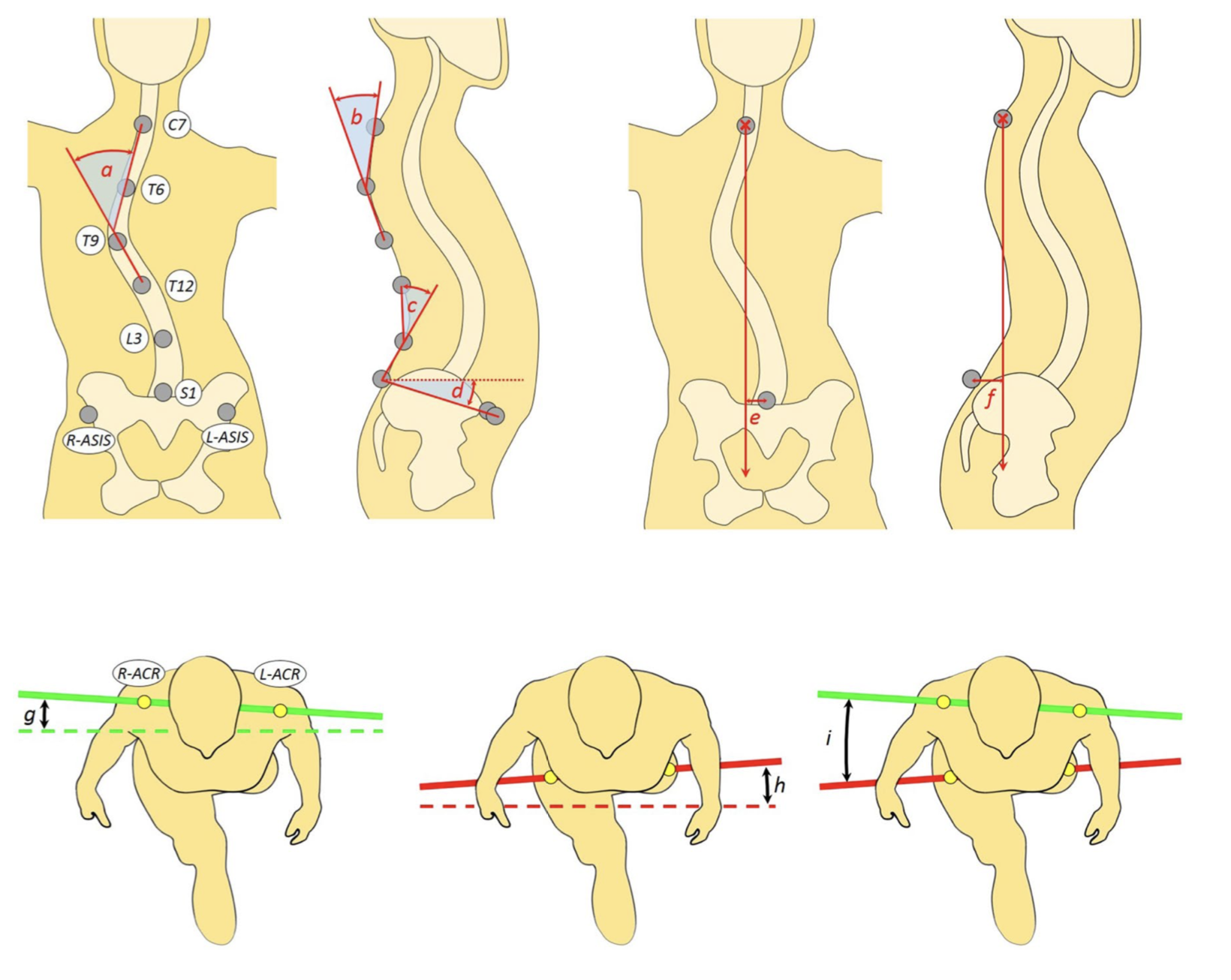 Characterization of trunk motion in adolescents with right thoracic idiopathic scoliosis