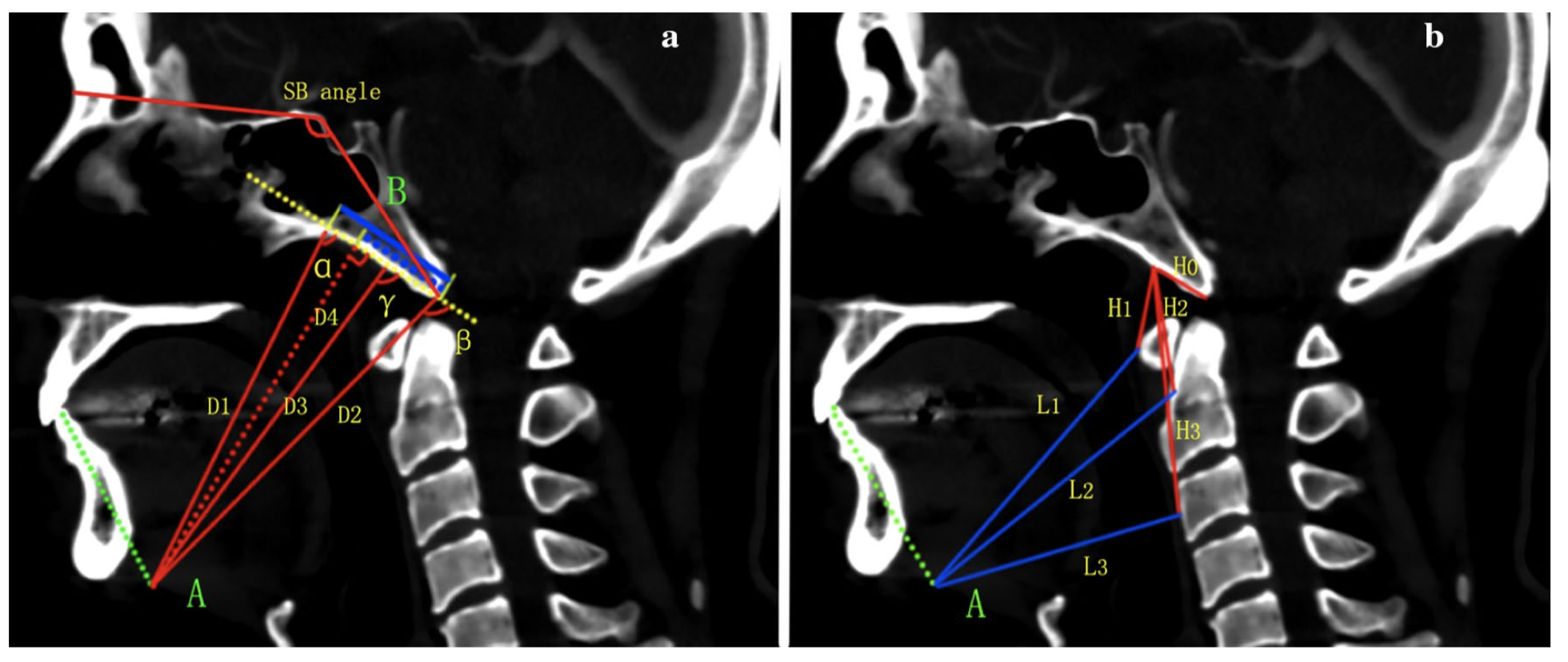 Clival screw and plate fixation by the transoral approach for the craniovertebral junction