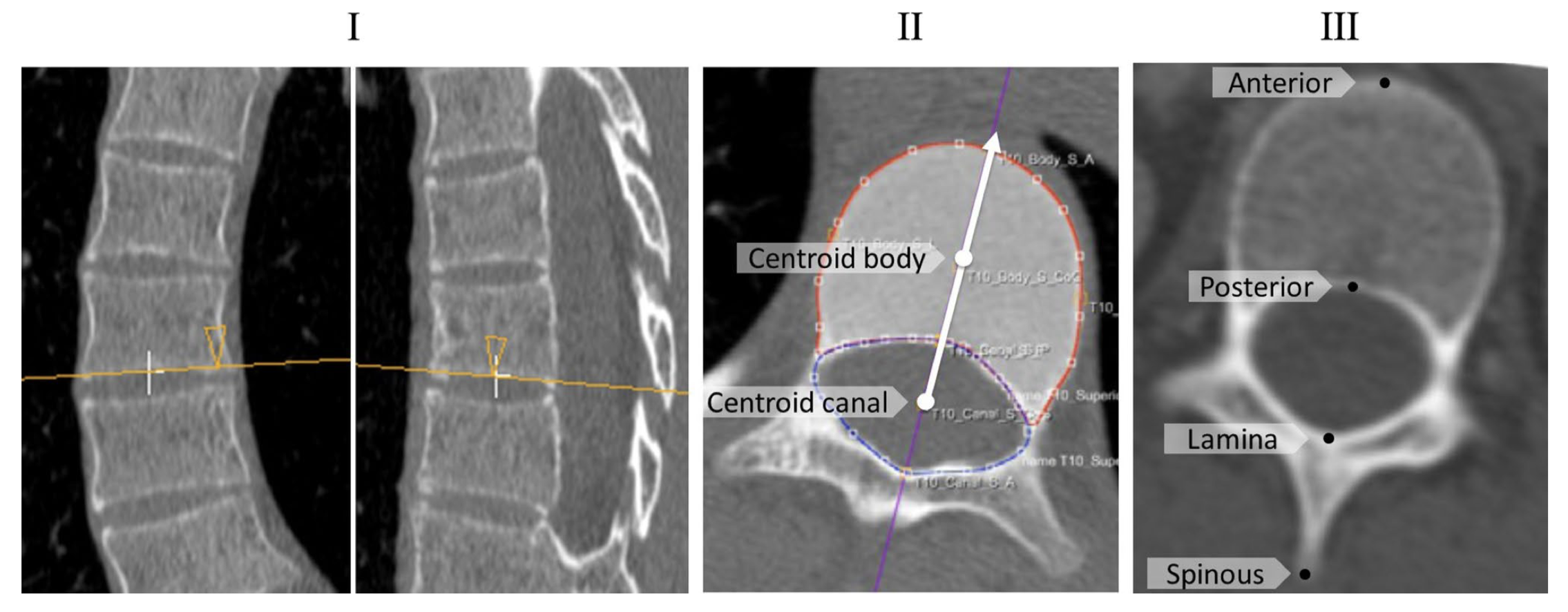 CT-based study of vertebral and intravertebral rotation in right thoracic adolescent idiopathic scoliosis