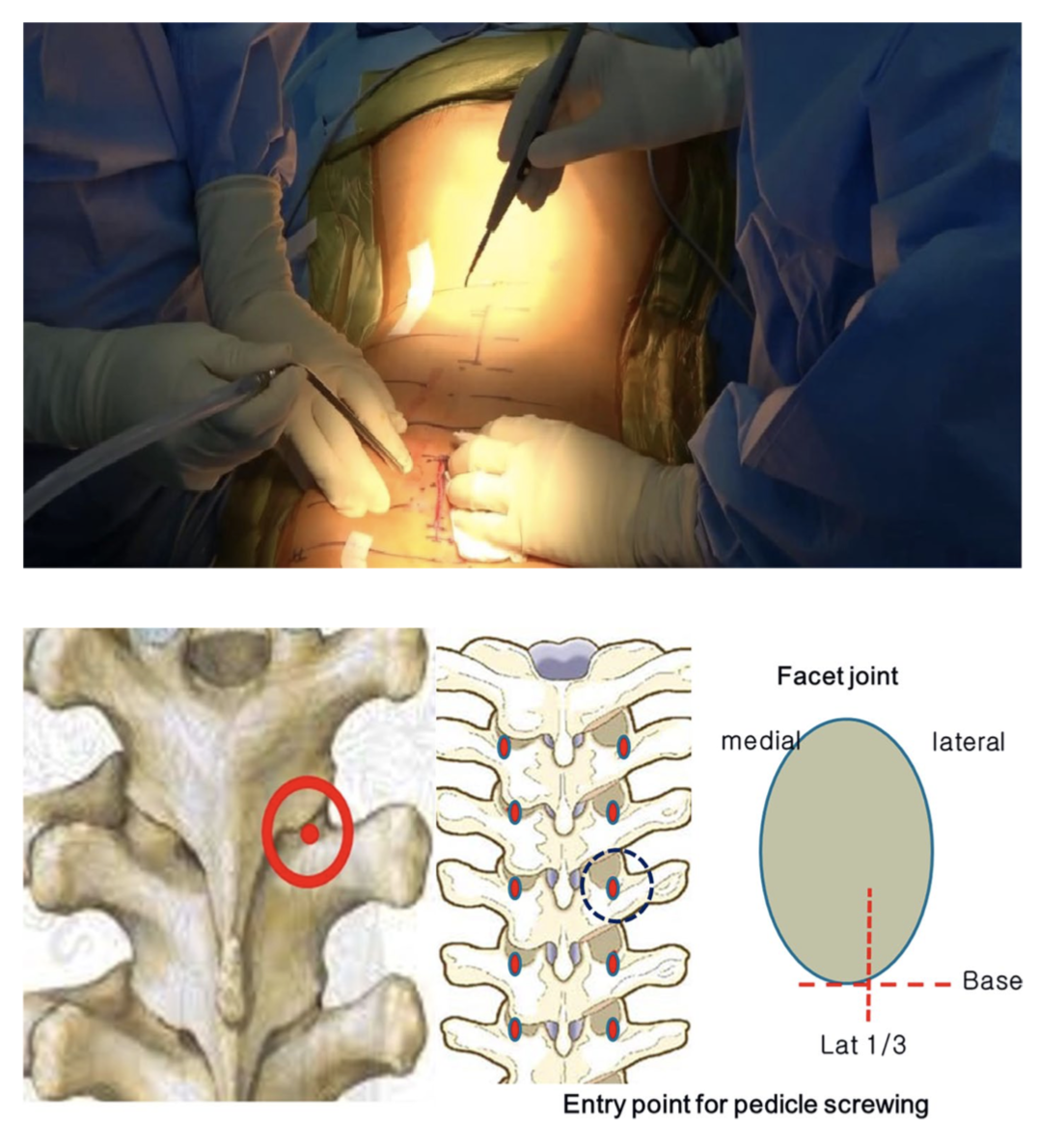 "Letter to the Editor concerning ""Safety and effectiveness of minimally invasive scoliosis surgery for adolescent idiopathic scoliosis: a retrospective case series of 84 patients"" by Yang JH, et al. (Eur Spine J; [2020] 29:761–769)"