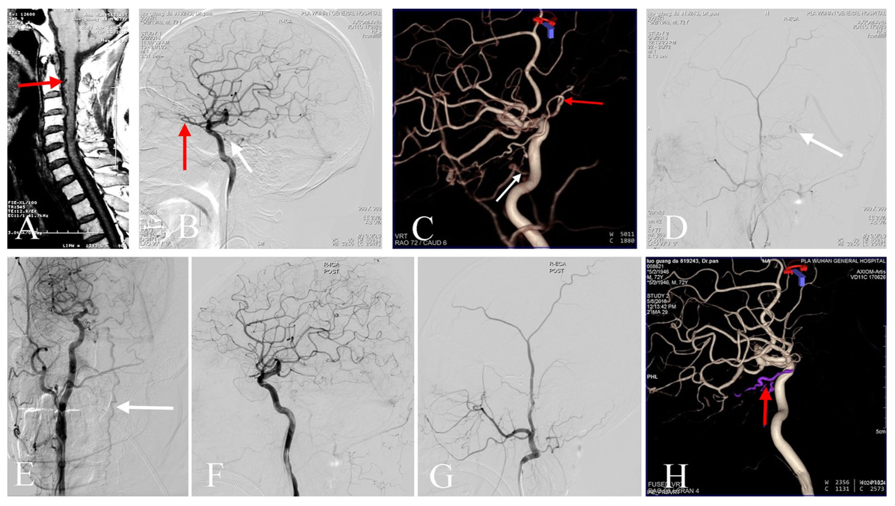Analysis of spinal angiograms that missed diagnosis of spinal vascular diseases with venous hypertensive myelopathy: the non-technical factors