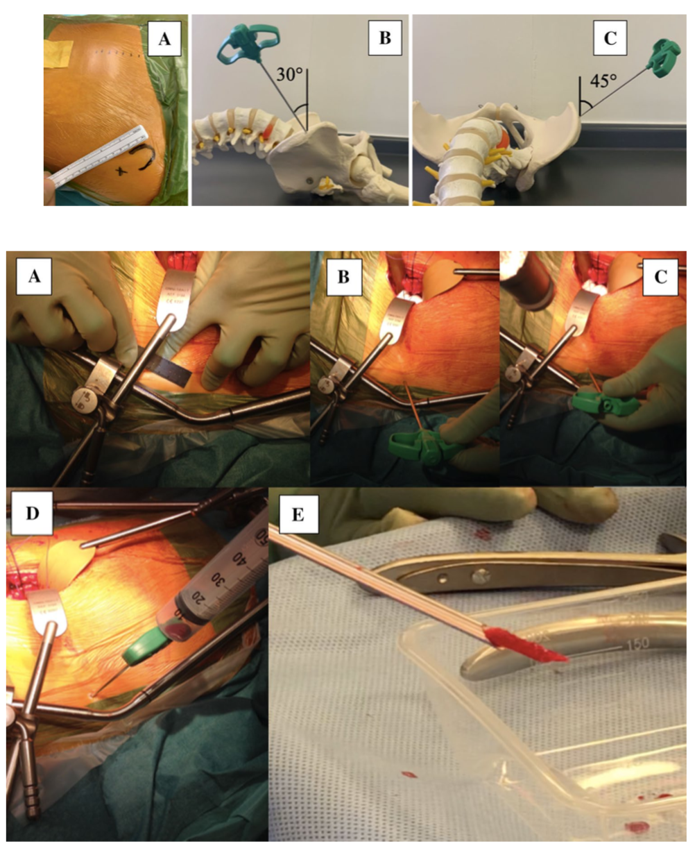 Novel bone grafting technique in stand-alone ALIF procedure combining allograft and autograft ('Northumbria Technique')—Fusion rate and functional outcomes in 100 consecutive patients