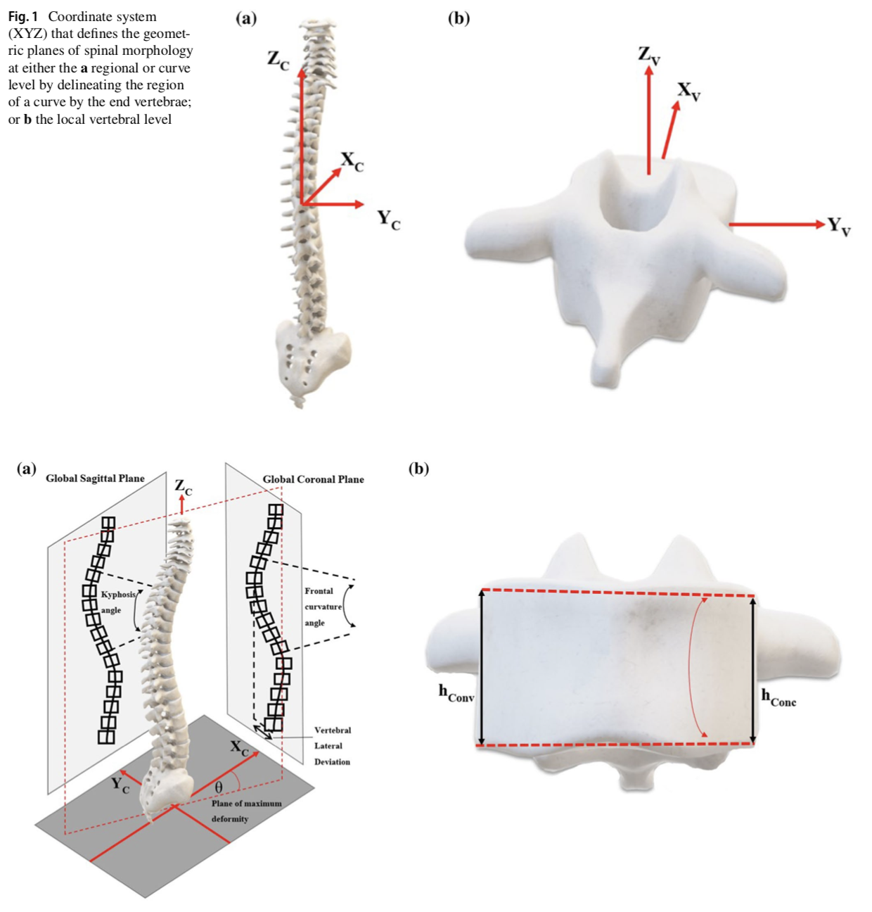 Adolescent idiopathic scoliosis 3D vertebral morphology, progression and nomenclature: a current concepts review
